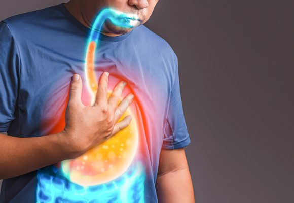Gastro Özofajial Reflü Hastalığı ve Tedavi Yöntemleri